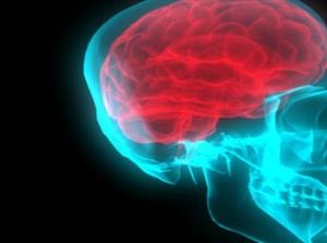 ictus cerebro